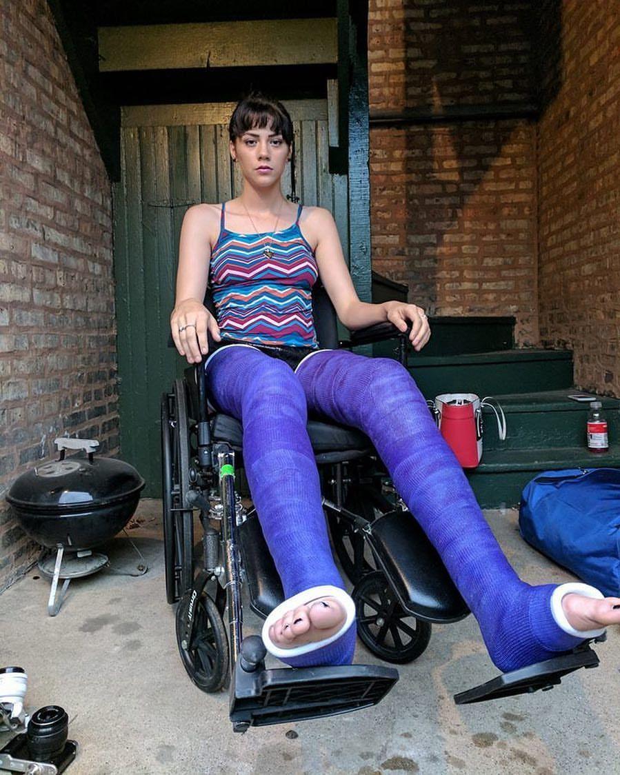 Arm Cast Long Leg Cast Plaster Cast Body Cast Braces Wheelchairs