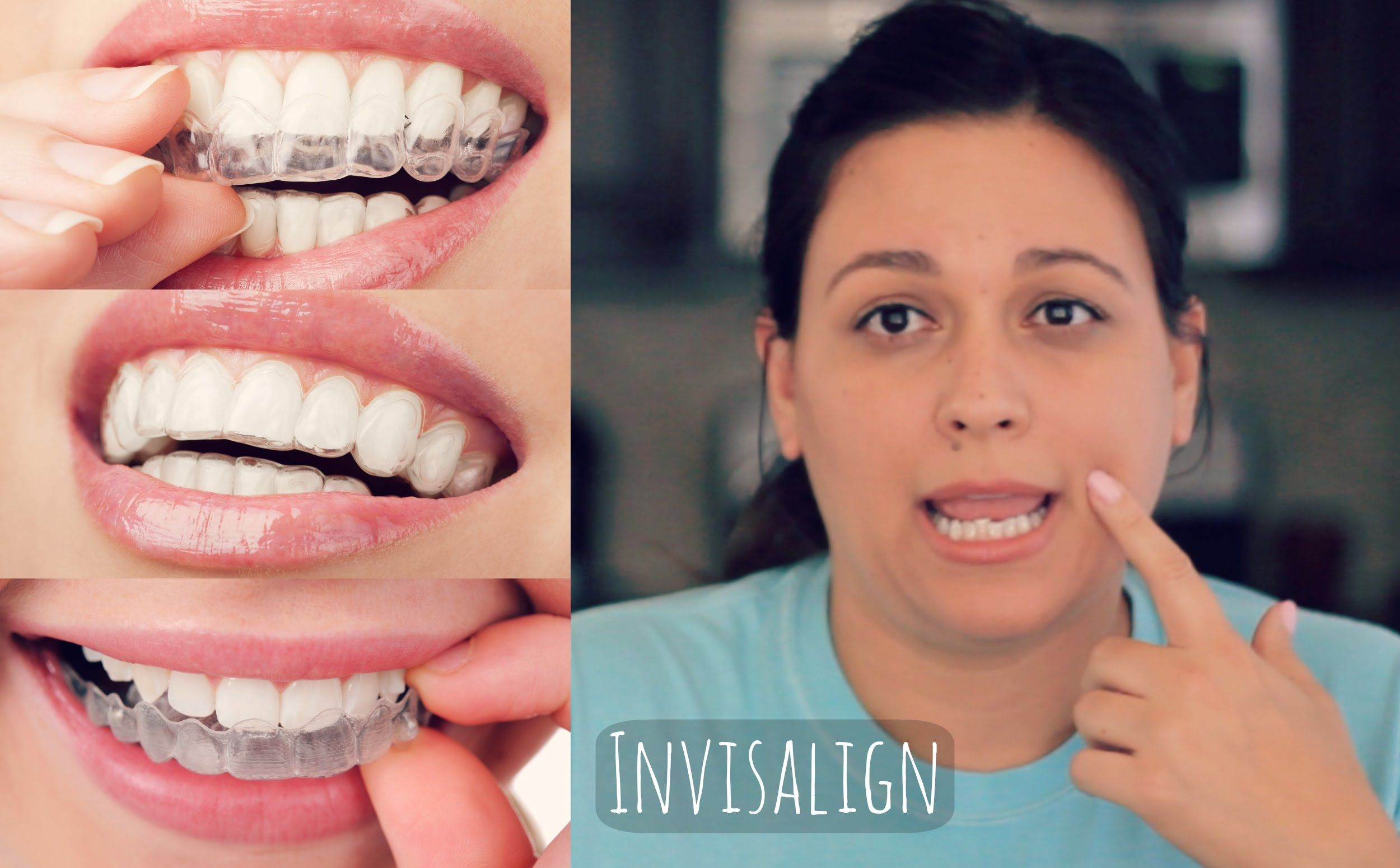 Invisalign review how it works and what to expect ive