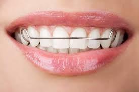 Clear Aligners Near Me   Dental retainer Teeth braces ...