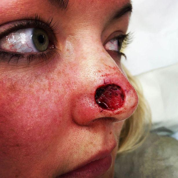 她11年來為曬成漂亮古銅色常助曬直到臉上突然出現一個小黑點,最後「鼻子不見畫面」嚇死人了!% 照片