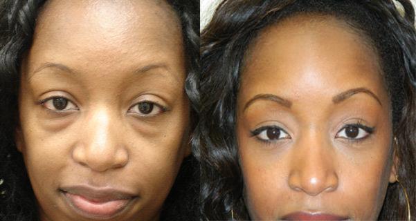 Blepharoplasty Healing Photos Eyelid Surgery Eye Surgery