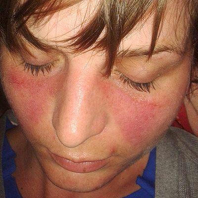 Systemic Lupus Erythematosus Wikipedia The Free Encyclopedia