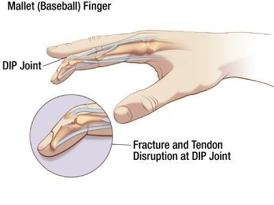 What is mallet finger, and how can you treat it? From Oh My Arthritis