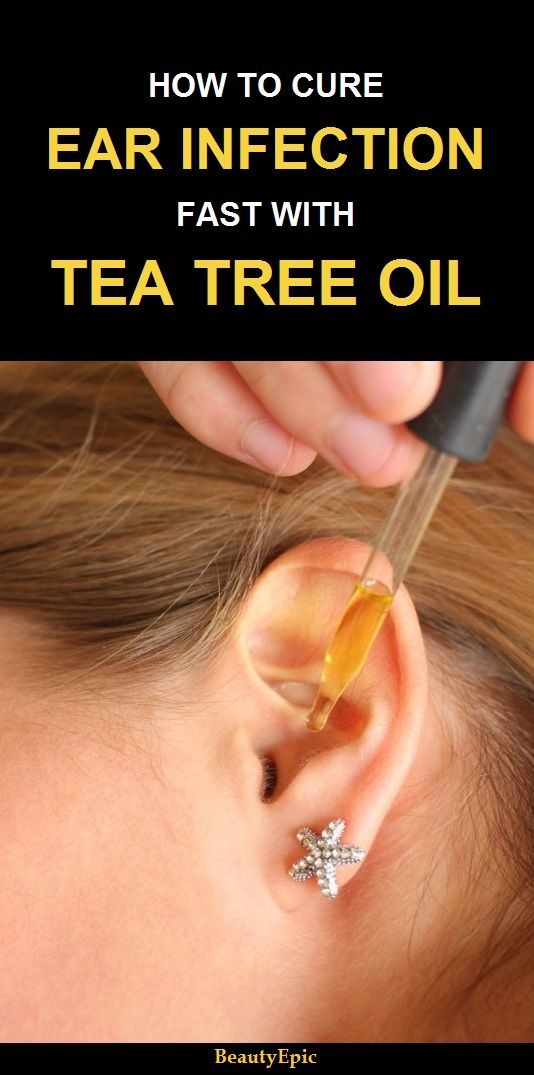 Is Tea Tree Oil Good For Ear Infections Home Remedies Pinterest