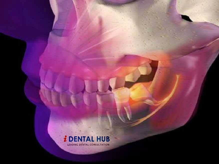 What is Third Molar or Wisdom Tooth | Dental | Pinterest | Anatomía