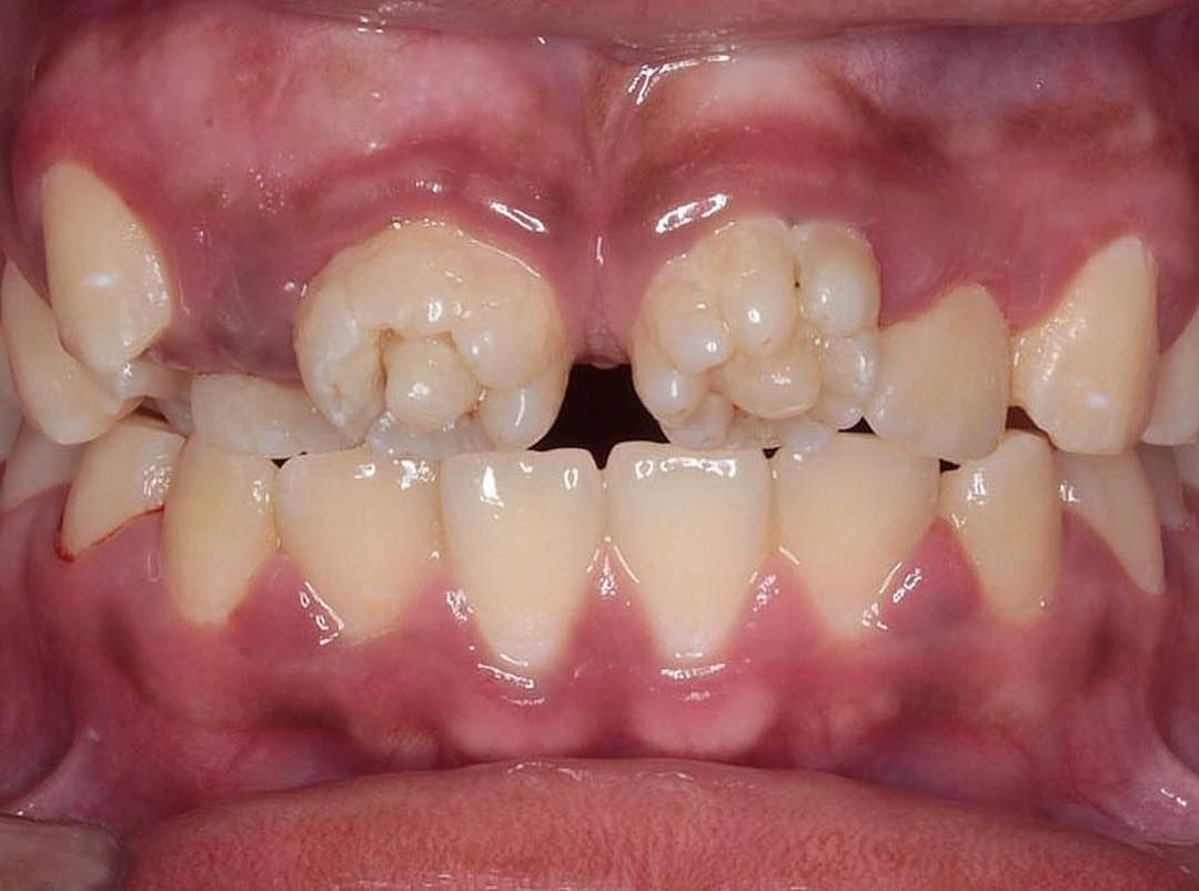 Dental stigmata and enamel thickness in a probable case of ...