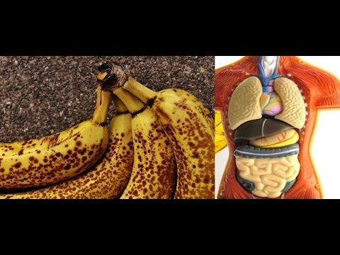 😮Eat 2 Black-Spotted Bananas a Day for a Month and THIS Will Happen to Y...