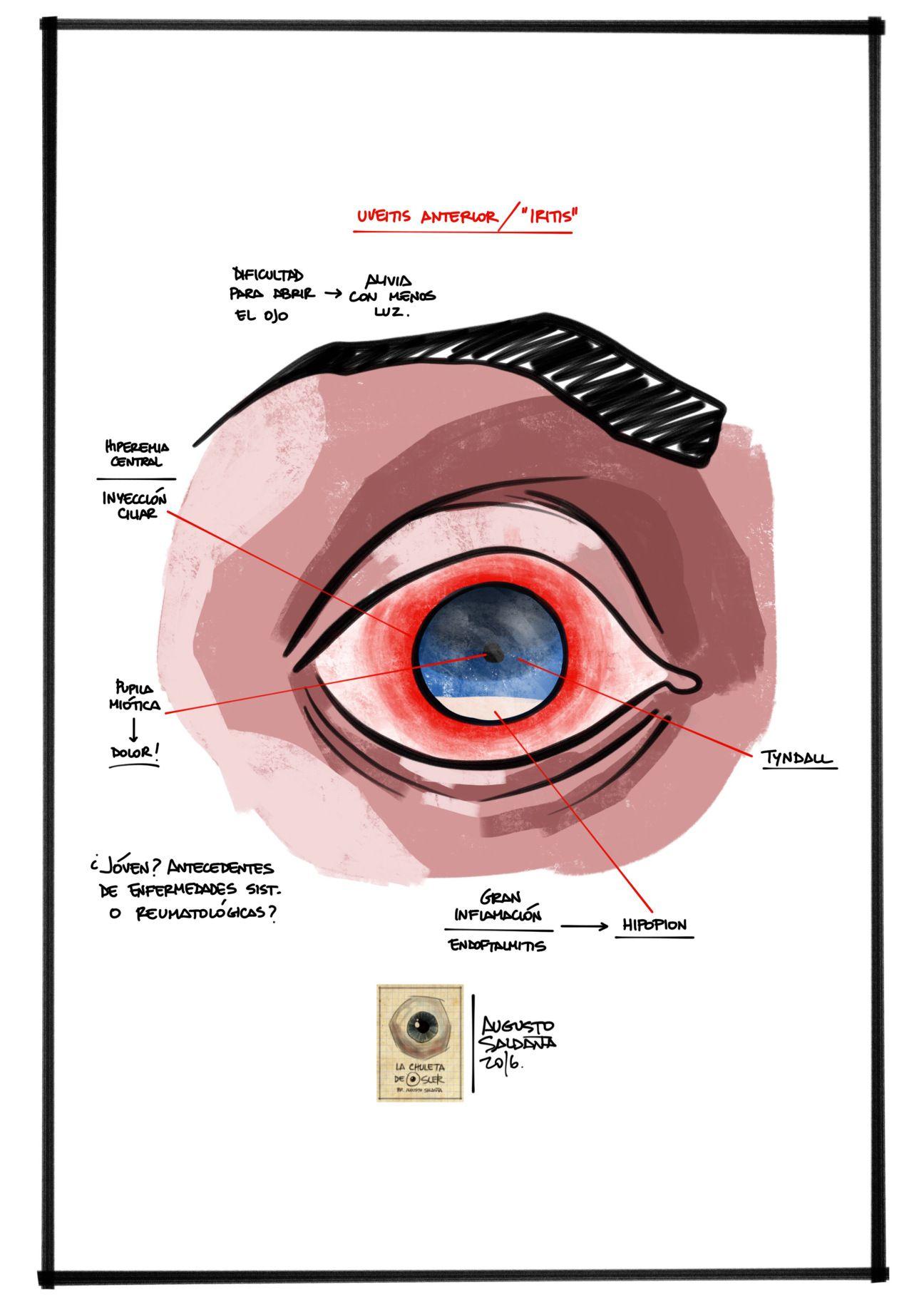 dolor de ojos rojos diabetes