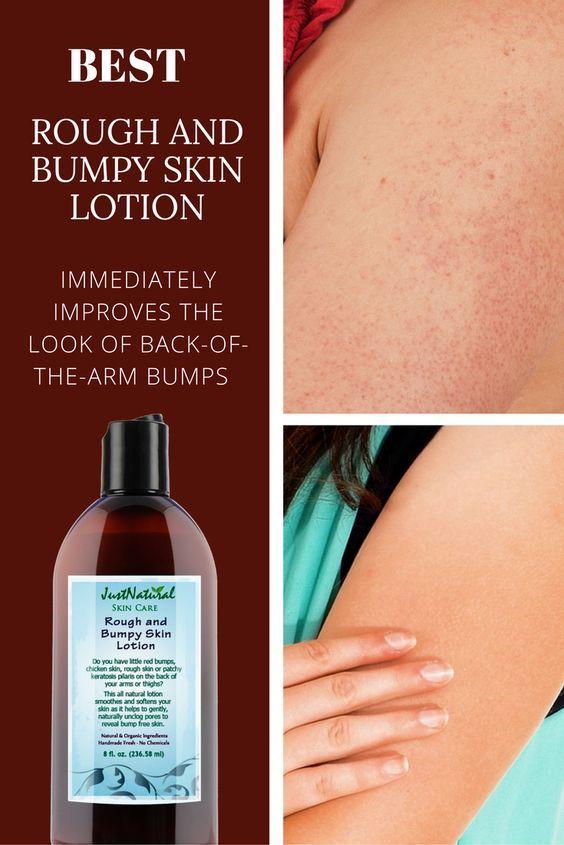 rough skin treatment