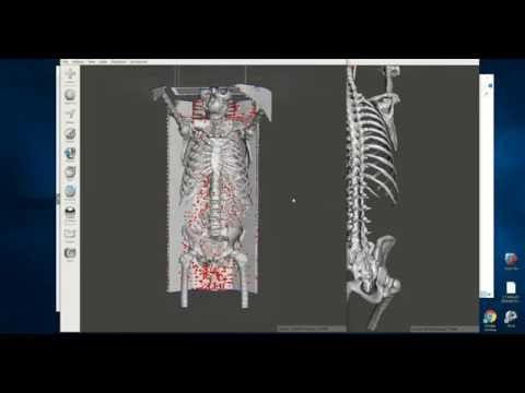 Easily Convert Medical Scans To 3d Printable Models Dicom To Stl Embodi3d Com 3d Printable Models Printables Scan