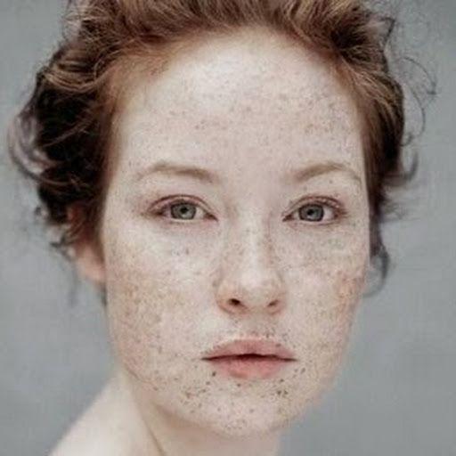 freckles Amateur redhead