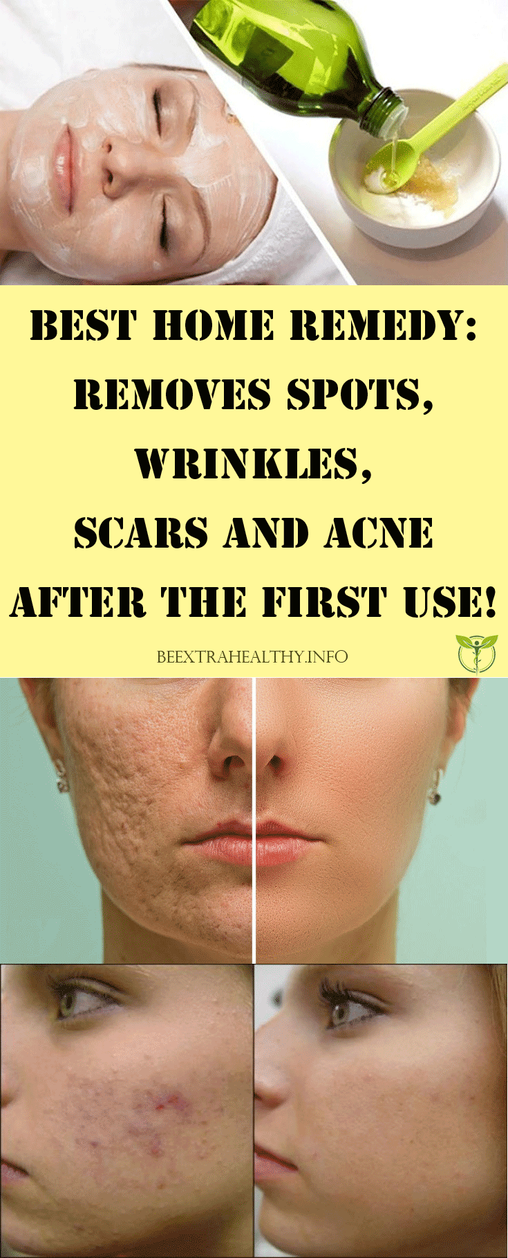 best home remedy removes spots wrinkles scars and acne after the