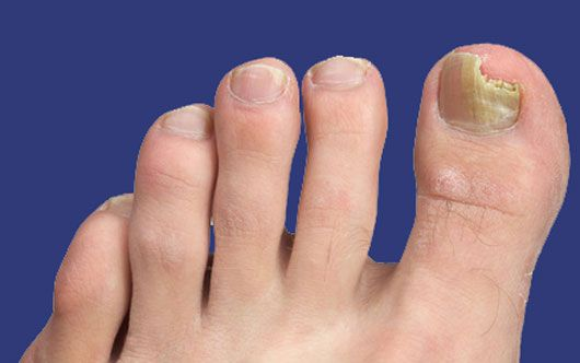 How To Get Rid Of Toenail Fungus What Remedies Work Toenail Fungus Cure Toenail Fungus Home Remedies Toenail Fungus
