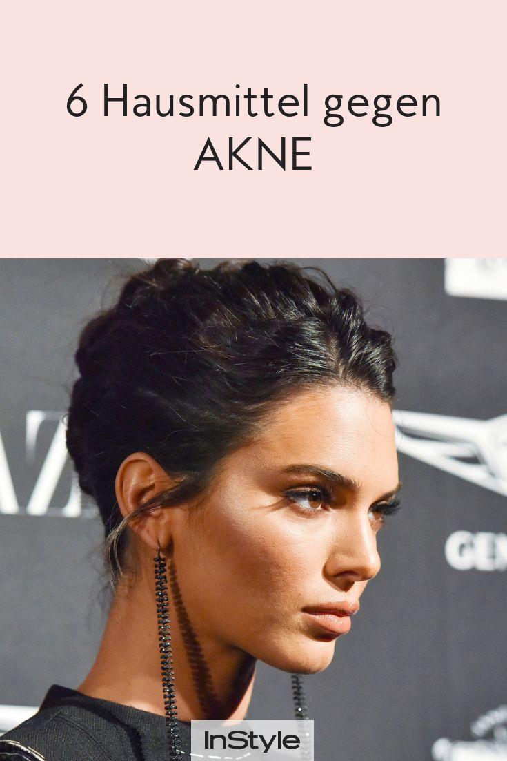 Diese 6 Hausmittel helfen gegen Akne#Eyes