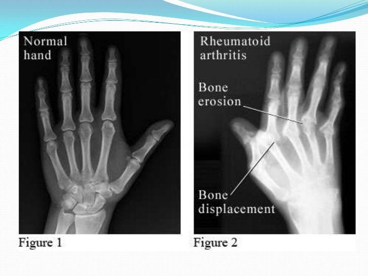 x ray rheumatoid arthritis vs osteoarthritis - Google ...