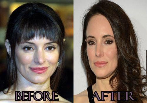 Stowe Before and After Plastic Surgery