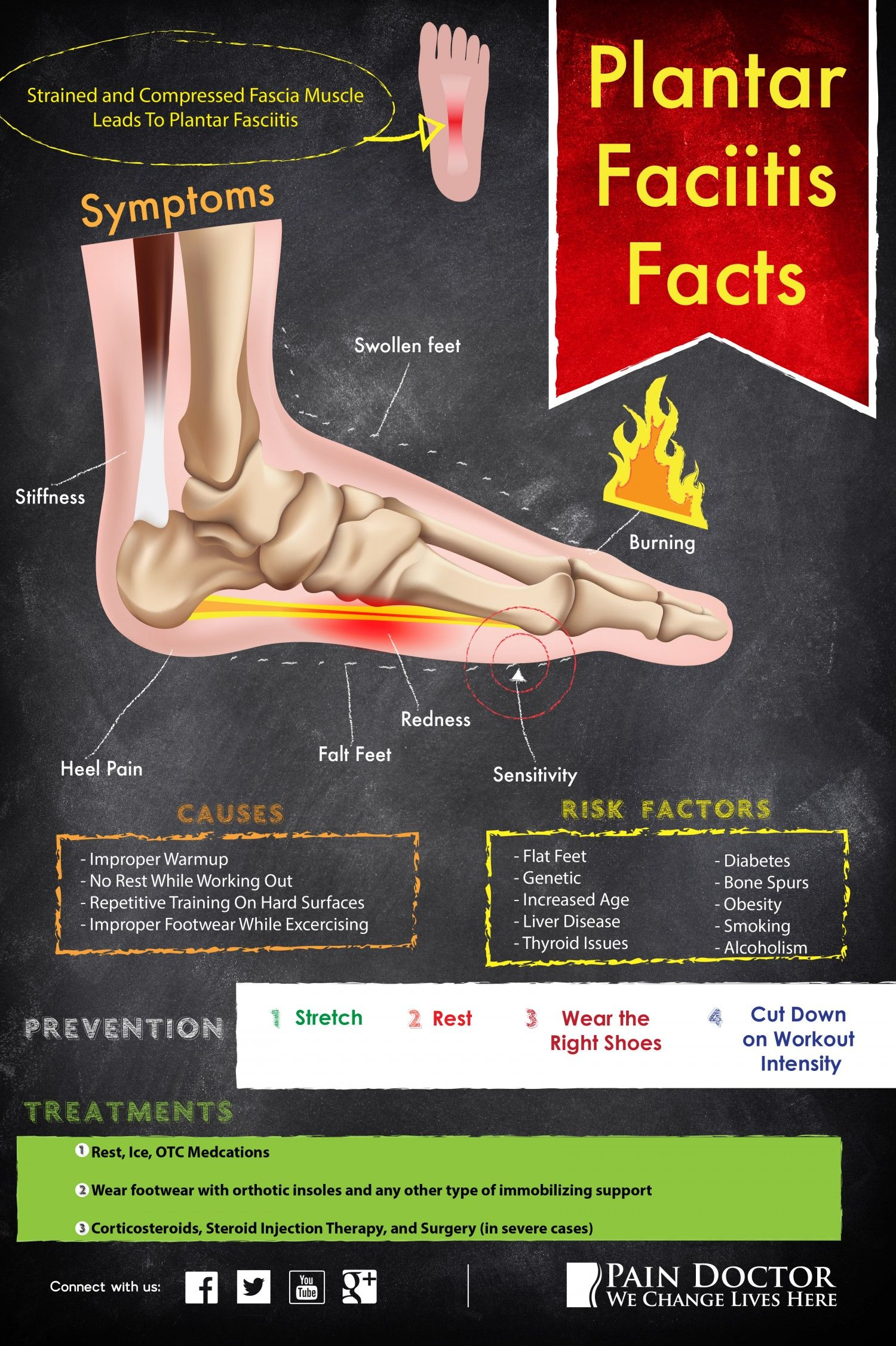 What Is Plantar Fasciitis fasciitis footpain infographic