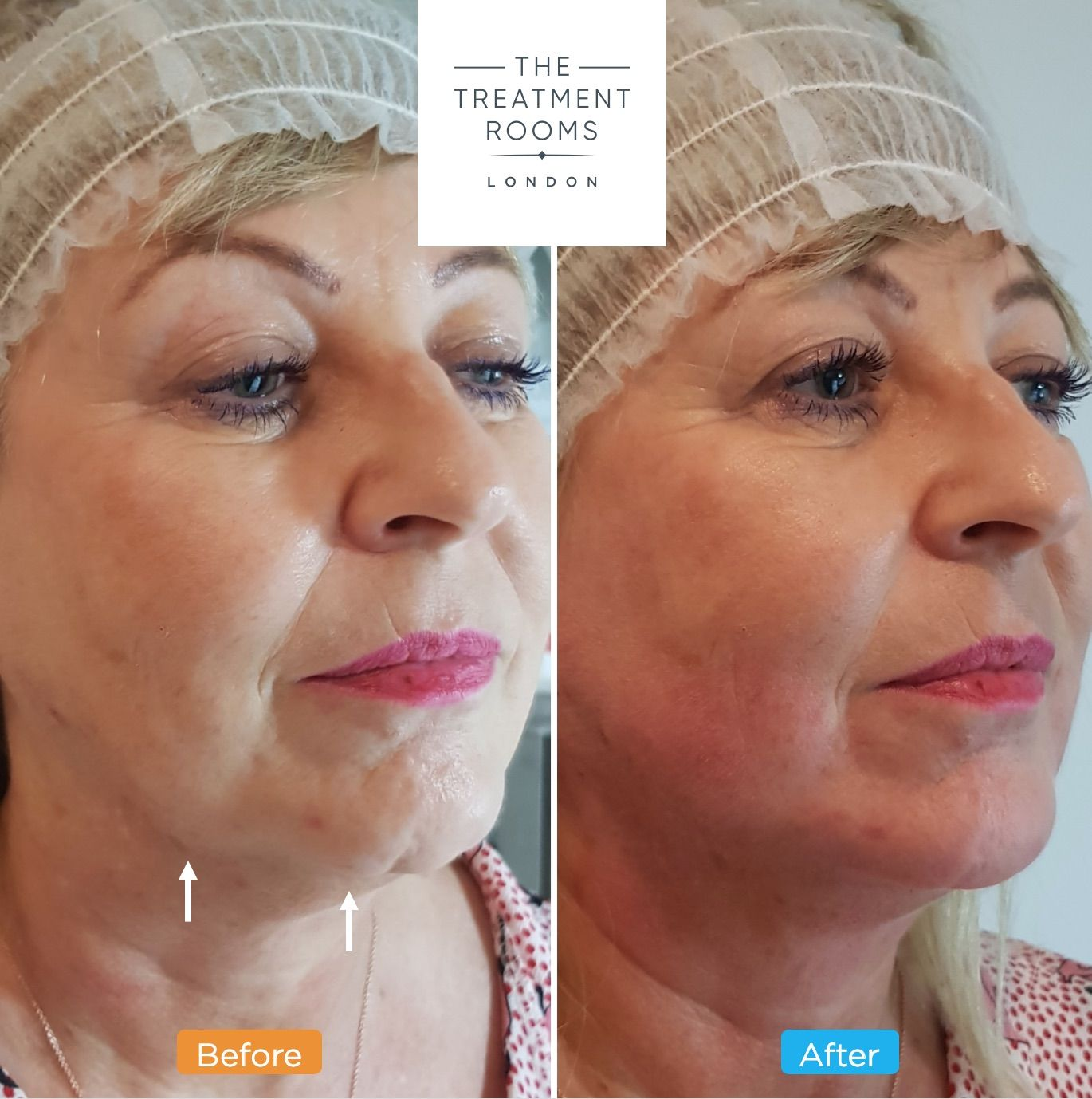 Non-Surgical Face Lift- Face Thread Lifts | Thread Lifts | Thread