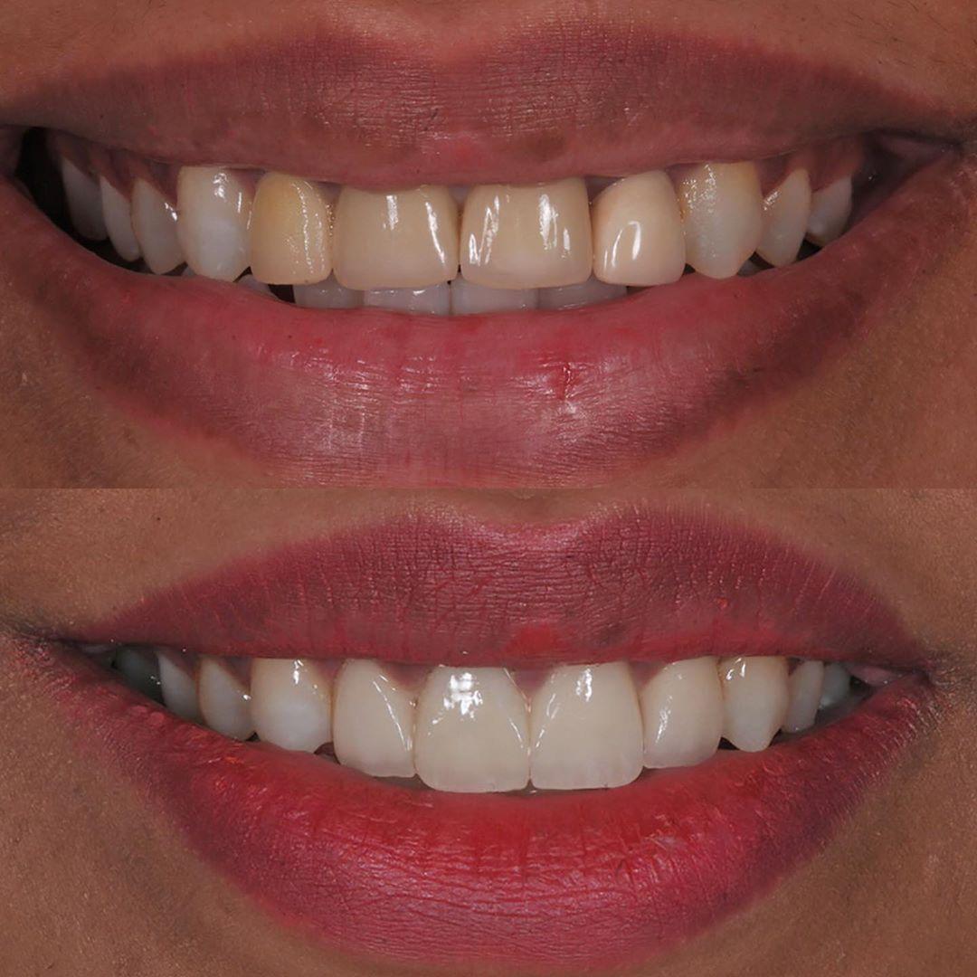 اصبح الهدف من تجميل الاسنان هو إيجاد اكبر قدر ممكن من التناسق بين عناصر الابتسامة الثلاثة الاسنان و اللثة و الشفاه بما يتناسب مع العمر و لون البشرة وشكل الو