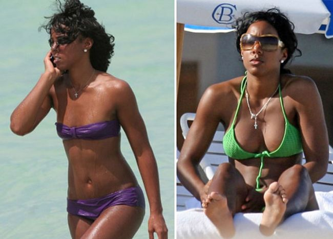 Most expensive breast implants