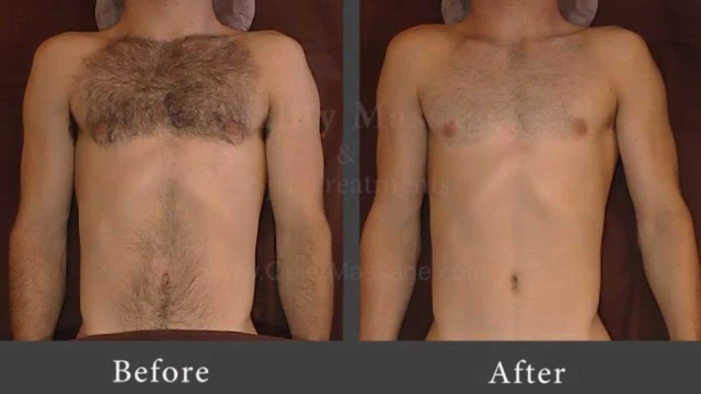 Manscaping Is The Process Of Getting Rid Of The Unwanted