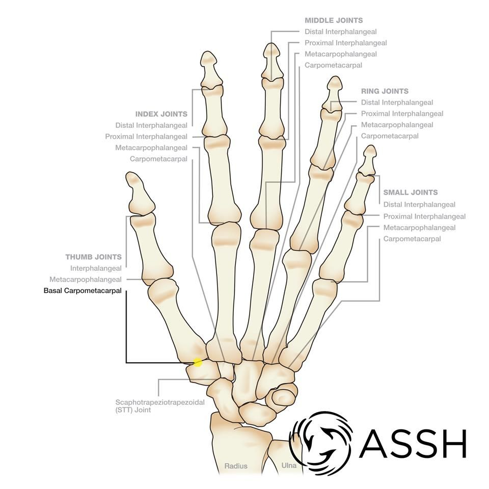 Thumb Basal Carpometacarpal Joint | Hand, Wrist and Finger Topics ...
