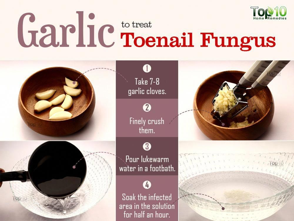 Nail fungus? See how to finish them quickly with this homemade remedy