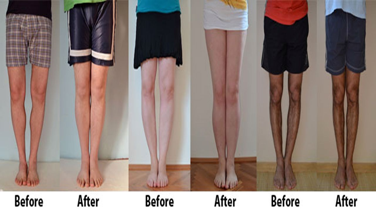 how to fix bow legs bowed+legs how to correct knock knees