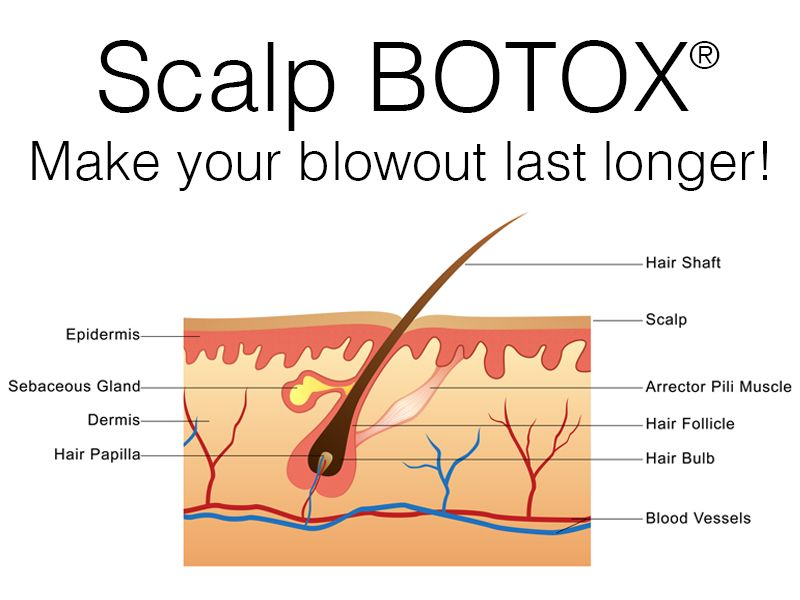 One of the newest and most interesting FDA approved uses for Botox