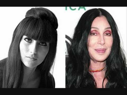 Epic Celebrity Plastic Surgery Disasters Celebrity Plastic