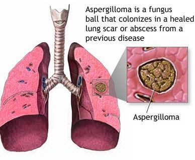 Lung Abscess– Causes, Symptoms, Diagnosis, Treatment and