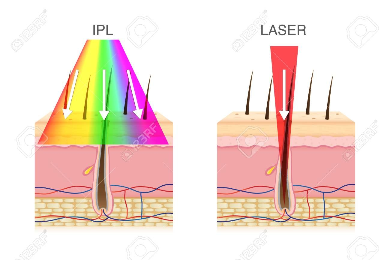 The Difference Of Using Ipl Light And Laser In Hair Removal Illustration About Beauty Technology Affiliate Light Laser Difference Ipl Hair