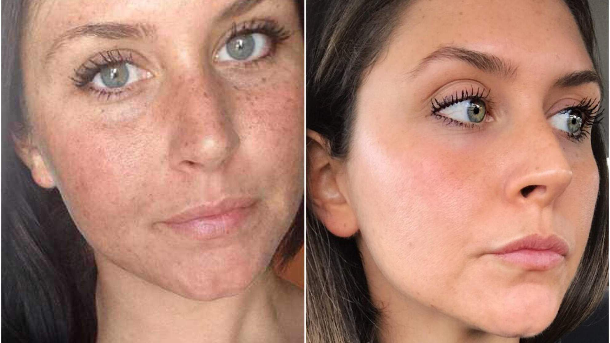 The Exact Anti Aging Products That Helped Heal Years Of Sun Damage On This Woman S Face Sun Damaged Skin Skin Care Women Skin Treatments