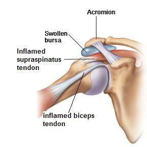 Rotator Cuff Labrum Bicep Surgery