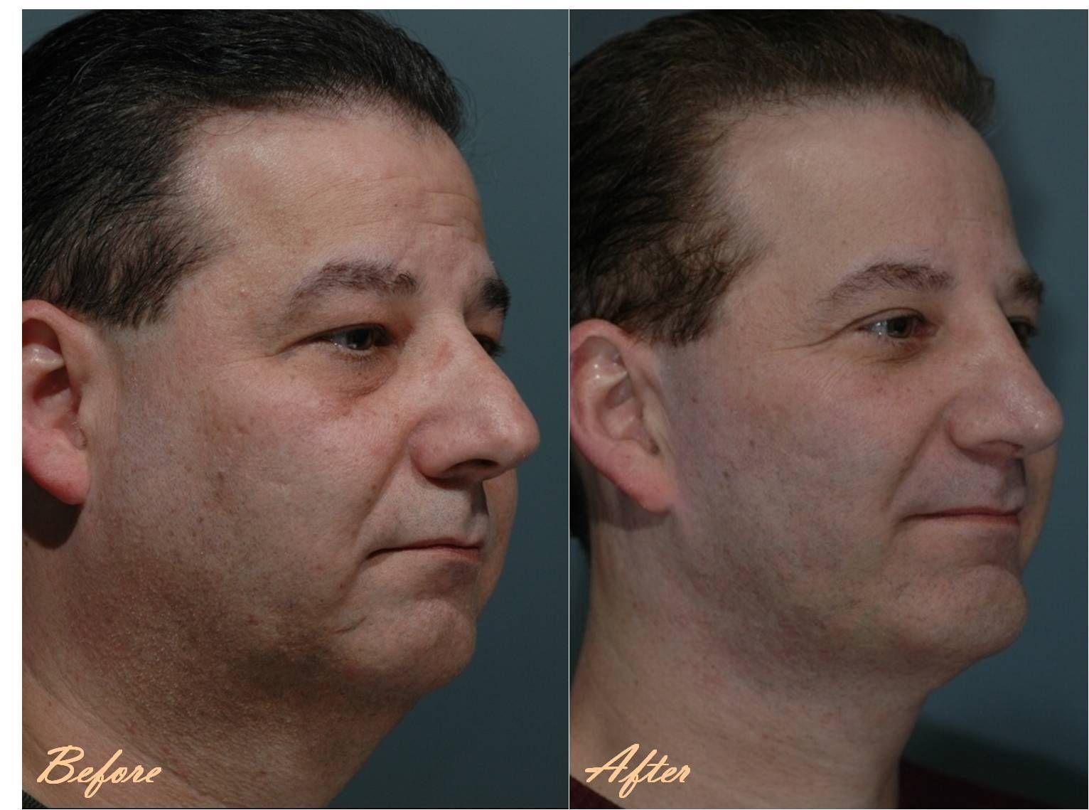 surgery plastic Marotta facial