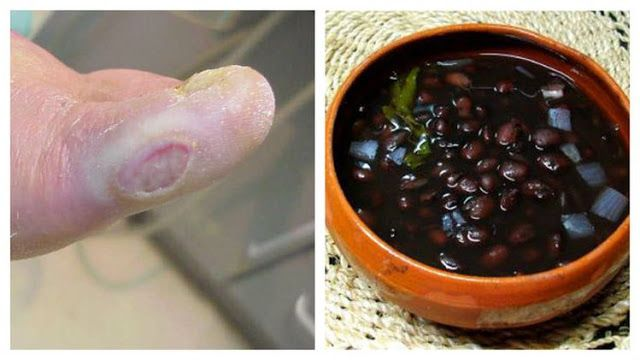 TU SALUD Y BIENESTAR : De Esta Manera era el Tratamiento de la Diabetes C...
