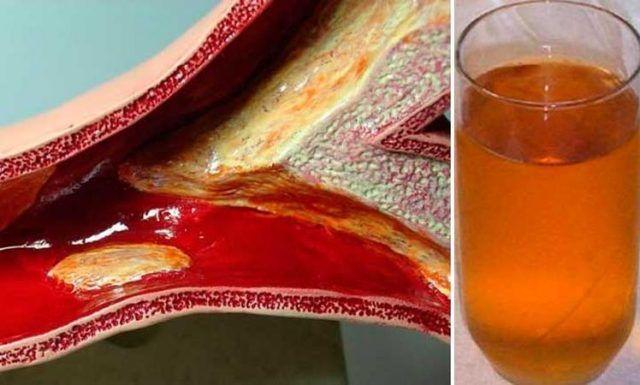 La arterosclerosis es un problema sumamente grave. Esto no es más que la obstrucción de las arterias causada por la acumulación de placas en las paredes internas de las mismas. Anuncios Como resultado, el flujo de sangre en el cuerpo se ve afectado debido a la obstrucción de su paso. Eventualmente, el problema puede empeorar …