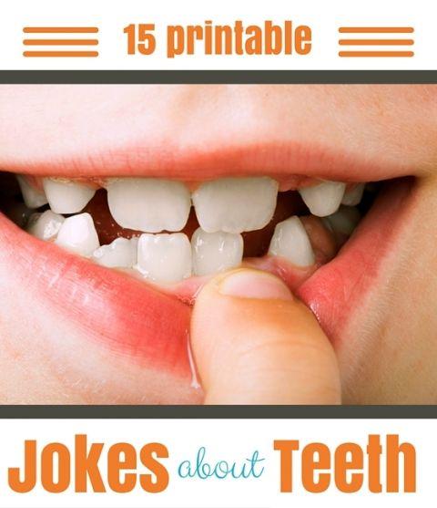 15 Funny Printable Tooth Jokes For Kids Jokes For Kids Jokes Knock Knock Jokes