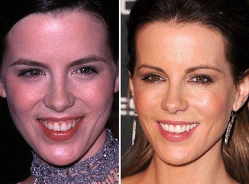 Actress kate beckinsale plastic surgery nose and teeth job
