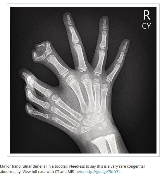 Mirror hand (ulnar dimelia) in a toddler. Needless to say this is a ...
