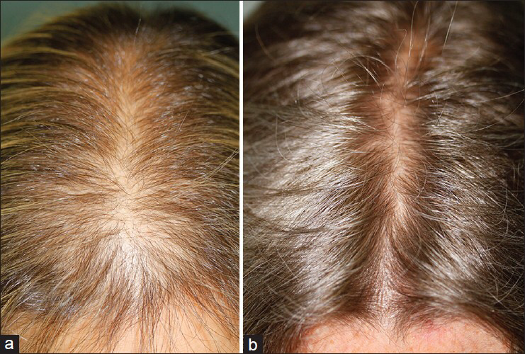 #MicroNeedling for Hairloss with MD Needle Pen! #MDNedlePen #MicroNeedlingForHairLoss http://www.mdneedlepen.com/microneedling-for-hair-loss/