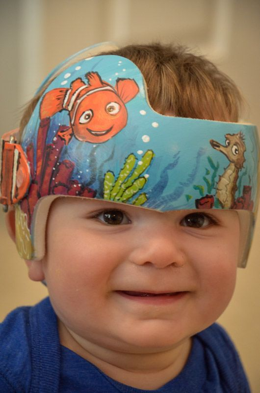 Nemo Band DOC BandCranial BandHelmet Httpswwwfacebookcom - Baby helmet decalspersonalized cranial band fairy decals just tinkering