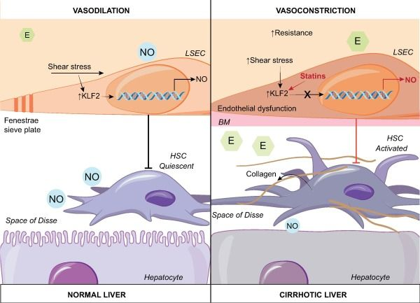 Role Of Liver Sinusoidal Cells Lsecs In Chronic Liver Diseases