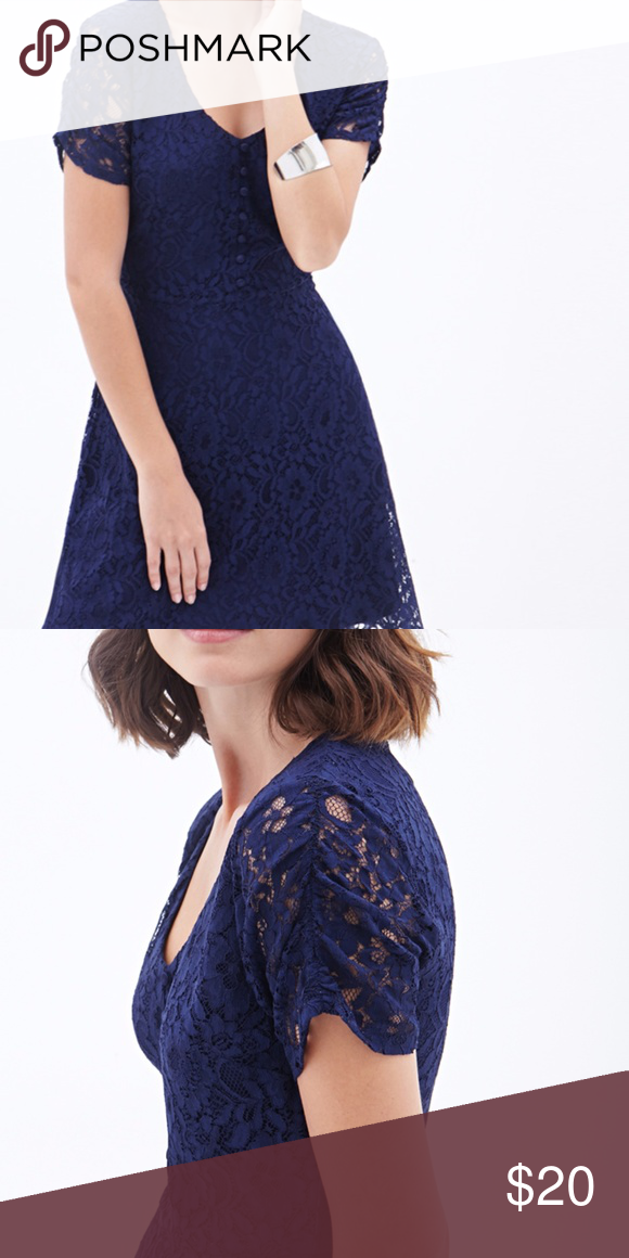 Gorgeous Navy Forever 21 Lace Button Front Dress Only Worn