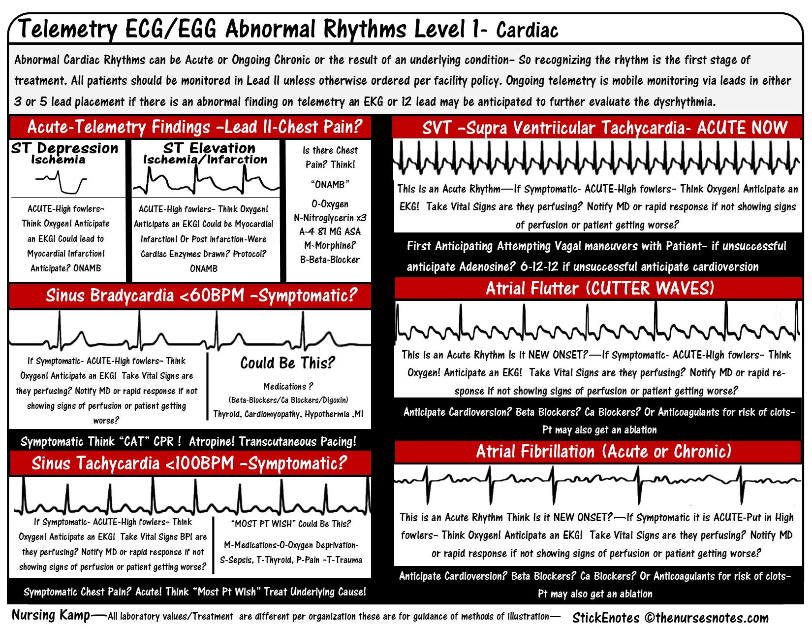 Pin About Cardiac Nursing On Ekg Rhythms