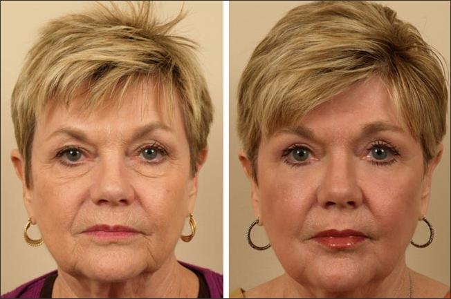 Upper Eyelid Surgery, Lower Eyelid Implants, Full Face Laser