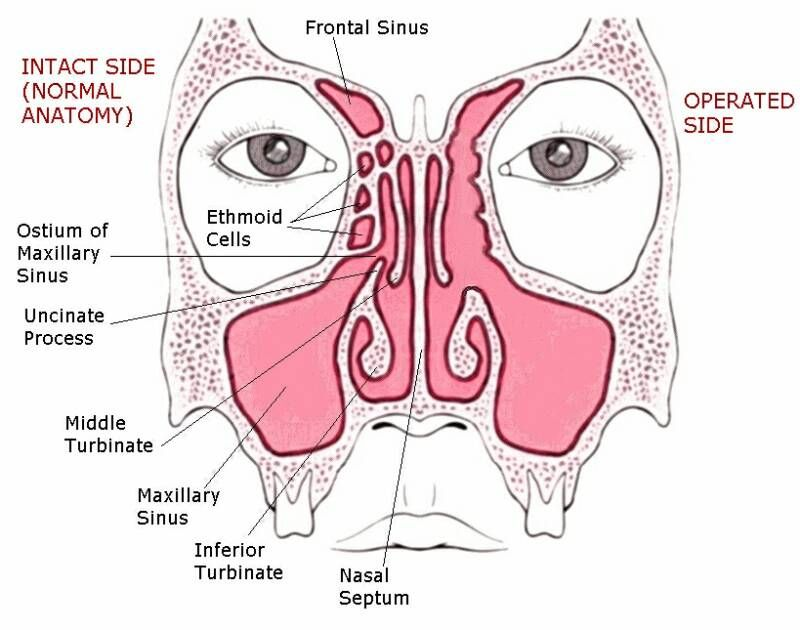 endoscopic sinus surgery | Picture of Functional Endoscopic Sinus ...