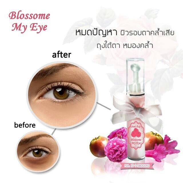 Cream Dark Circles For Those Who Suffer In The Dark Under Eye Segregationist Very Beautiful Eyes Attractive And Healthy Anti Aging Serum Antiaging Hair Beauty