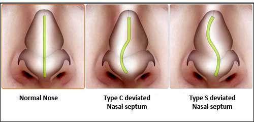 Deviated Septum Do You Have It Rhinoplasty Septum Sinus