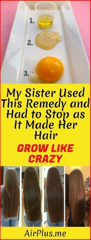 My Sister Used This Remedy And Had To Stop as it Made Her Hair Grow Like Crazy! – Airplus #InfotoHairLossTreatments